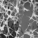 Left: normal bone, right: osteoporotic bone